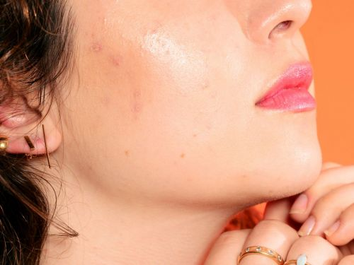 "What Is ""Orange Peel Skin"" - & How Can You Get Rid Of It?"