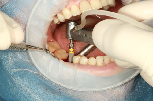 How To Minimize the Cost of Dental Implants