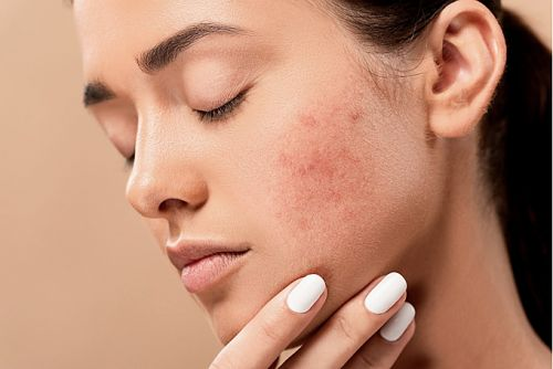 How can acne affect you emotionally?