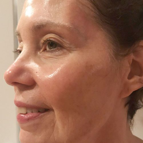 People Don't Believe My Mom Is 71-Here Are 8 Anti-Aging Serums She Uses