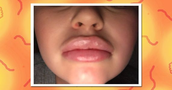 Everything you need to know if you're considering getting lip fillers